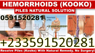 Piles or hemorrhoid solution in ghana