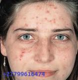 ALOE GEL FOR BLEMISHES AND PUSTULES ON THE FACE +27799616474