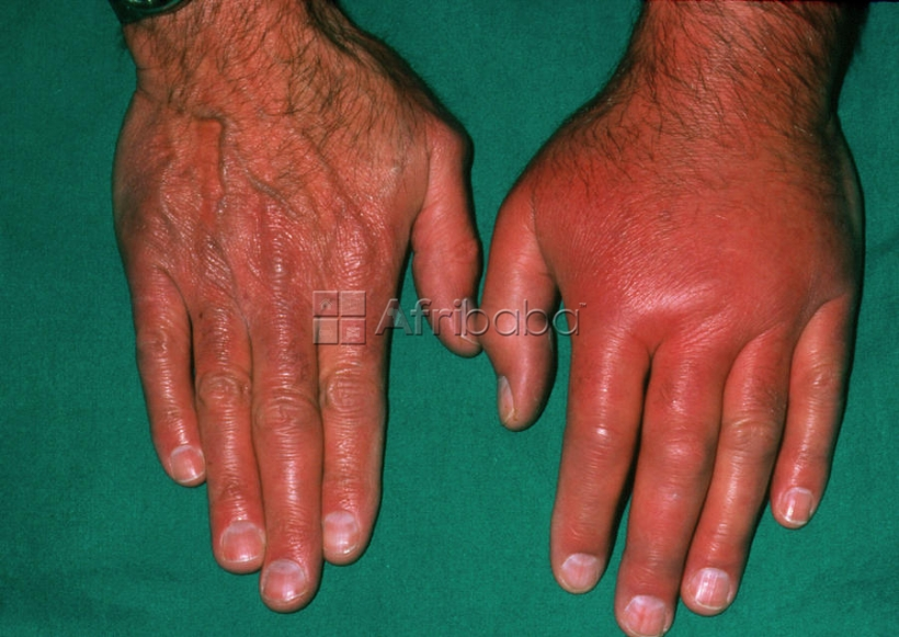 Wonder working cure for Gout Arthritis #1