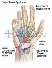 Permanent cure for Carpal Tunnel Syndrome